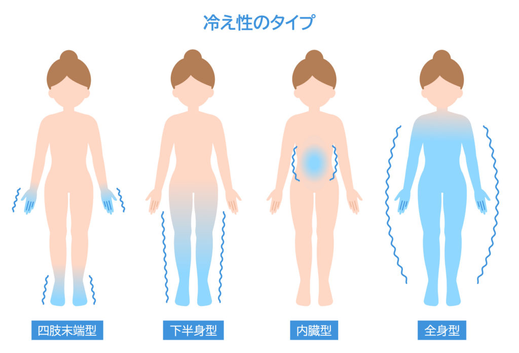 冷え性の4つのタイプ